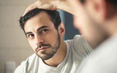 Calvície e alopécia são a mesma coisa?